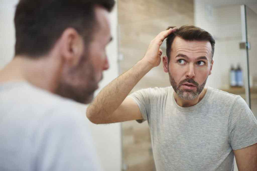 Is there a right age to get a Hair Transplant?