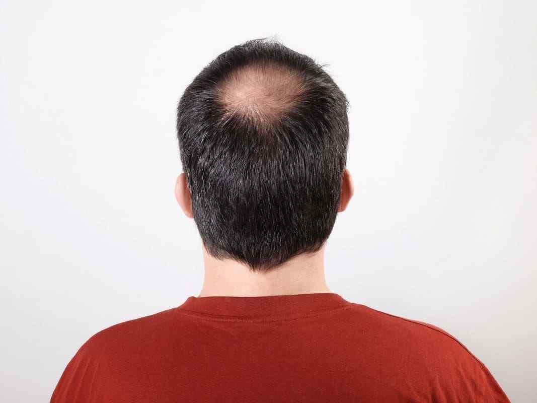 All about alopecia areata