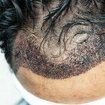 Fue hair transplant mexico