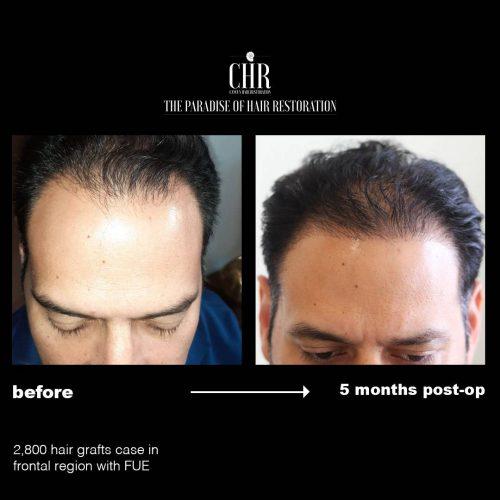 Before - After (Javier Garcia)