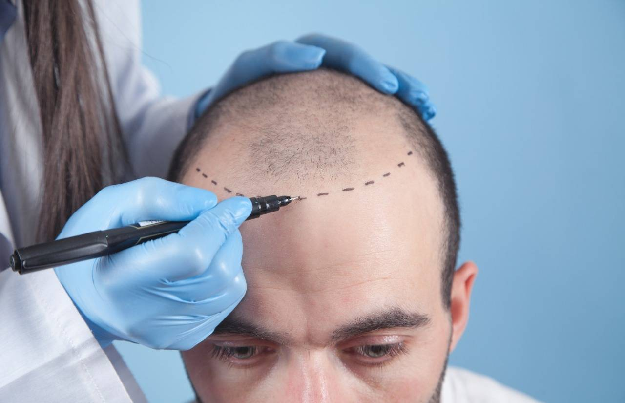 The hair transplant abroad in Mexico